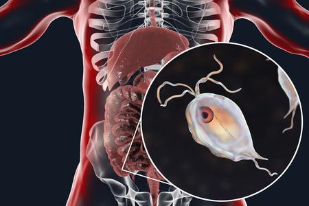 Pentatrichomonas hominis protozoan in human intestine, 3D illustration. Also known as Trichomonas hominis or T. intestinalis, colonizes large intestine, usually asymptomatic but may cause diarrhea