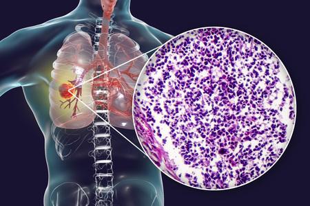 Lungenkrebs, 3D-Darstellung und Foto unter dem Mikroskop. Histopathologische lichtmikroskopische Aufnahme von kleinzelligem Lungenkrebs