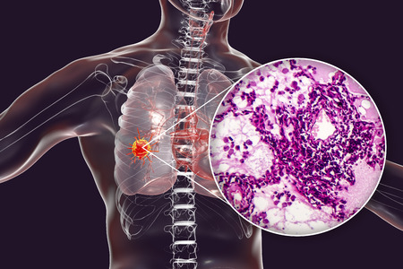Cancro al polmone, illustrazione 3D e foto al microscopio. Micrografia ottica che mostra l'adenocarcinoma polmonare Archivio Fotografico