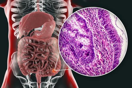 Colon cancer, 3D illustration and photo under microscope. Light micrograph showing colon adenocarcinoma