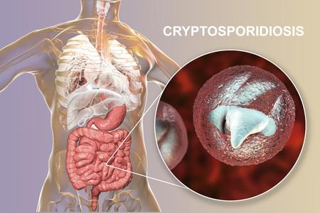 Cryptosporidiosis, a diarrheal disease caused by Cryptosporidium parvum protozoan. 3D illustration showing release of parasite sporozoites from oocyst inside small intestine Stock Photo
