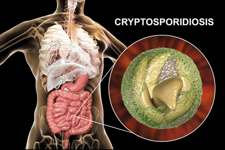 Cryptosporidiosis, a diarrheal disease caused by Cryptosporidium parvum protozoan. 3D illustration showing release of parasite sporozoites from oocyst inside small intestine 写真素材