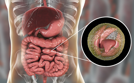 Cryptosporidiosis, a diarrheal disease caused by Cryptosporidium parvum protozoan. 3D illustration showing release of parasite sporozoites from oocyst inside small intestine Stock Photo