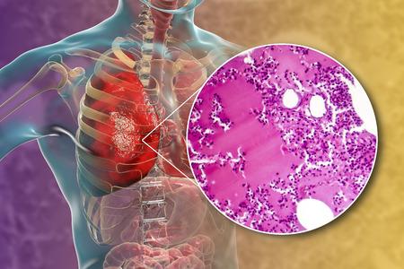 Lobar pneumonia, hemorrhagic edema period, 3D illustration and light micrograph, photo under microscope
