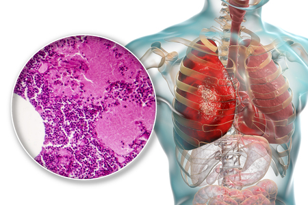Lobar pneumonia, hemorrhagic edema period, 3D illustration and light micrograph, photo under microscope 写真素材