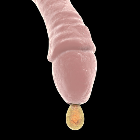 Male gonorrhea, medical concept. 3D illustration showing drop of pus coming from man urethra, the main symptom of gonorrhea Banco de Imagens