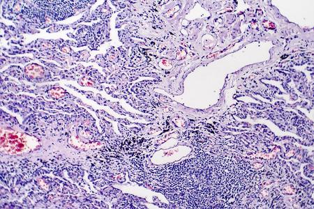 Histopathology of tuberculosis, light micrograph of tuberculosis lesion, photo under microscope Stock Photo