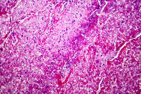 Caseation of human tuberculosis granuloma, light micrograph, photo under microscope. Caseous necrosis, necrotizing granulomatous inflammation Stock Photo