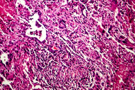 Miliary tuberculosis, light micrograph, photo under microscope