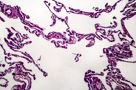 Histopathology of lung emphysema, light micrograph, photo under microscope showing enlargement of air spaces in lung tissue and destruction of alveolar septa Stock Photo