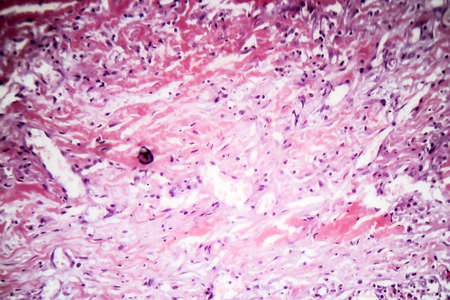 Histopathology of tuberculous pleurisy, light micrograph, photo under microscope Stock Photo