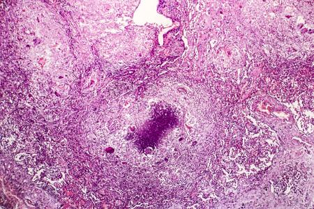 Histopathology of tubercle, light micrograph, photo under microscope