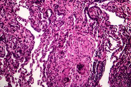 Caseous pneumonia, light micrograph, photo under microscope. Tuberculosis pneumonia