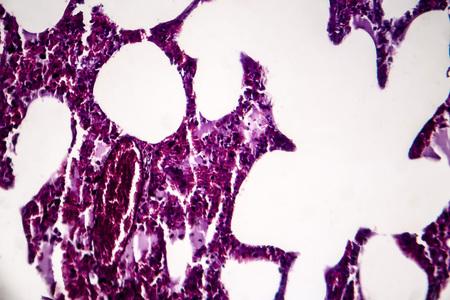 Histopathology of pneumonia, light micrograph, photo under microscope. Cellulose aspiration pneumonia
