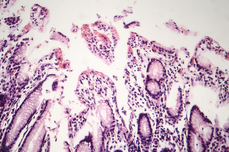 Histopathology of chronic atrophic gastritis, light micrograph, photo under microscope Imagens