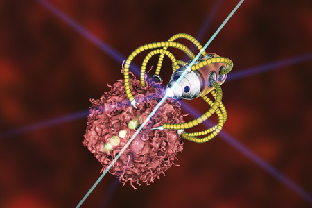 Nanorobot attacking cancer cell, nanotechnology medical concept, 3D illustration. Nano sized robots developed to treat cancer