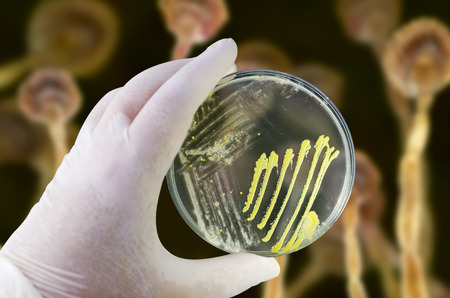 Colonies of different bacteria and mold fungi on Petri dish with nutrient agar on the fungal background, photo and 3D illustration Stok Fotoğraf - 119902544