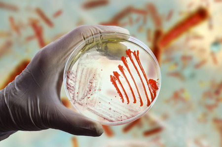 Colonies of different bacteria and mold fungi on Petri dish with nutrient agar on the bacterial background, photo and 3D illustration Stock Photo