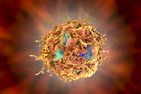 Destruction of cancer cell, 3D illustration. Concept of cancer treatment and prevention