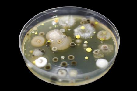 Colonies de différentes bactéries et moisissures provenant de l'air atmosphérique cultivées sur boîte de Pétri avec gélose nutritive, vue rapprochée. Contexte de la microbiologie