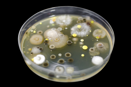 Colonies of different bacteria and molds from atmospheric air grown on Petri dish with nutrient agar, close-up view. Microbiology background