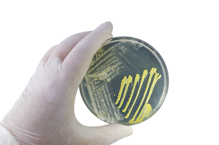 Colonies of different bacteria and mold fungi grown on Petri dish with nutrient agar, close-up view. Hand in white glove holding plate with microbes isolated on white background Stok Fotoğraf - 120440232