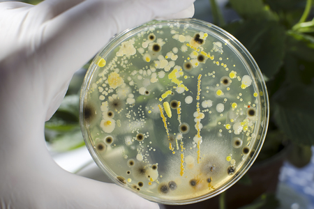 Researcher hand in glove holding Petri dish with colonies of different bacteria and molds on natural background. Biotechnology concept