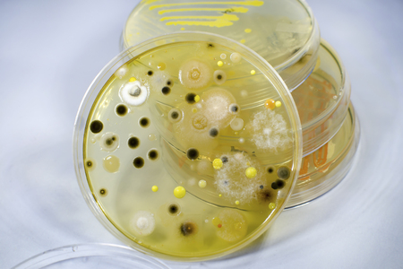 Colonies of different bacteria and mold fungi grown on Petri dish with nutrient agar, close-up view. Microbiology background