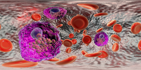 360-degree spherical panorama of blood with eosinophilia showing multiple eosinophils surrounded by red blood cells, 3D illustration