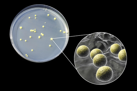 Colonies of Micrococcus luteus bacteria on agar plate and close up view of micrococci bacteria, photo and 3D illustration