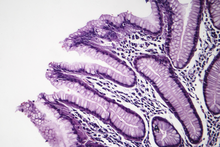 Histopathology of chronic superficial gastritis, light micrograph, photo under microscope