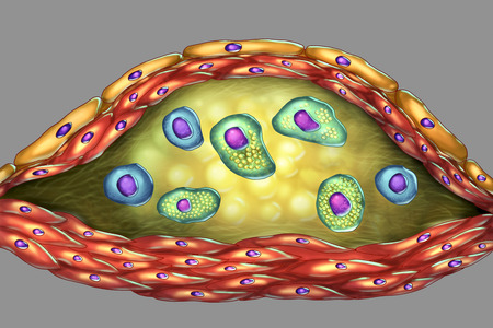 Structure of atherosclerotic plaque. Illustration showing necrotic center, foam cells, T-lymphocytes inside of cholesterol plaque with walls made of smooth muscle cells and endothelium of blood vessel Stockfoto