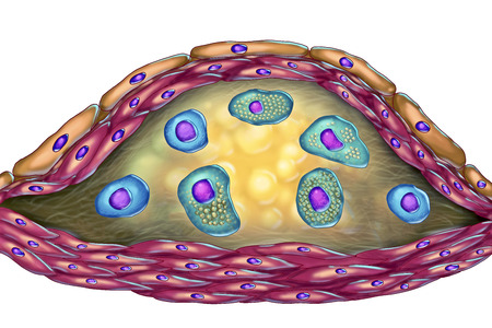 Structure of atherosclerotic plaque. Illustration showing necrotic center, foam cells, T-lymphocytes inside of cholesterol plaque with walls made of smooth muscle cells and endothelium of blood vessel Stock Photo