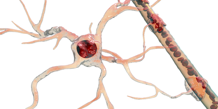 Astrocyte and blood vessel, 3D illustration. Astrocytes, brain glial cells, also known as astroglia, connect neuronal cells to blood vessels Stock Illustration - 123657885