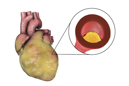 Atherosclerotic plaque in coronary blood vessel of obese heart, 3D illustration