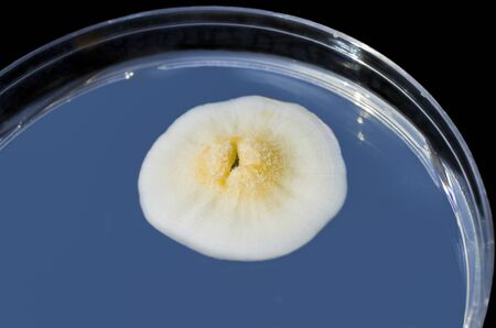 Colony of mold fungus cultivated from indoor air on Petri dish with Sabourad dextrose agar