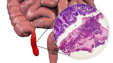 Acute suppurative appendicitis, 3D illustration of human intestine with inflammed appendix and light micrograph, photo under microscope