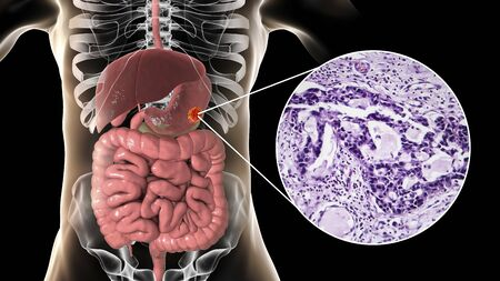 Stomach adenocarcinoma, gastric cancer, 3D illustration and light micrograph