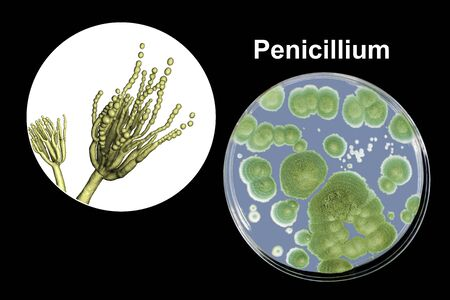 Penicillium mold fungi, 3D illustration and photo of colonies grown on nutrient medium Foto de archivo - 127472759