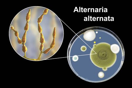 Mold Alternaria alternata, allergic fungus, 3D illustration and photo of colony on agar plate. Alternaria is the causative agent of plant diseases, is common indoor mold and causes allergy