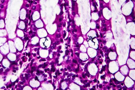 Bacillary dysentery, light micrograph, photo under microscope showing presence of bacteria and accumulation of inflammatory cells. High magnification Stock Photo