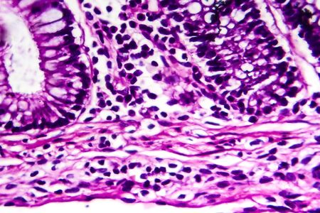 Bacillary dysentery, light micrograph, photo under microscope showing presence of bacteria and accumulation of inflammatory cells