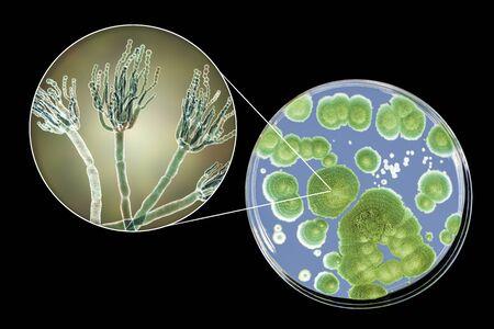 Penicillium mold fungi, 3D illustration and photo of colonies grown on nutrient medium Foto de archivo - 127986510