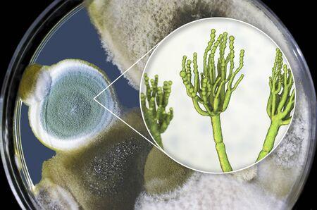 Penicillium mold fungi, 3D illustration and photo of colonies grown on nutrient medium Foto de archivo - 127986511