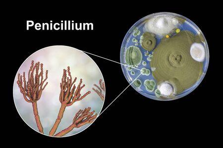 Penicillium mold fungi, 3D illustration and photo of colonies grown on nutrient medium Foto de archivo - 127986521