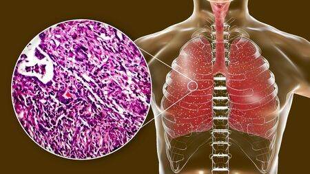 Miliary tuberculosis, 3D illustration and light micrograph showing histopathology of the lung affected by multiple tiny tuberculosis lesions Foto de archivo