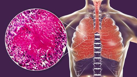 Miliary tuberculosis, 3D illustration and light micrograph showing histopathology of the lung affected by multiple tiny tuberculosis lesions Stock Photo