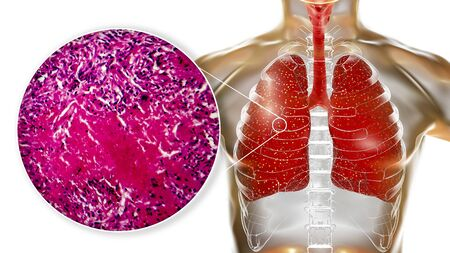 Miliary tuberculosis, 3D illustration and light micrograph showing histopathology of the lung affected by multiple tiny tuberculosis lesions Stock fotó