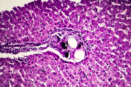 Liver schistosomiasis, light micrograph, photo under microscope showing presence of Schistosoma ova, calcified eggs of the flat worm, in hepatic tissue