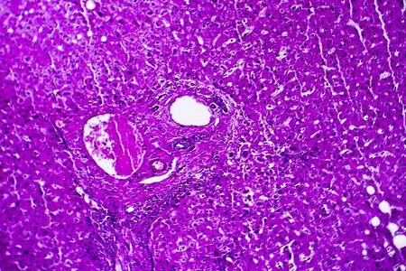 Liver edema, light micrograph, photo under microscope